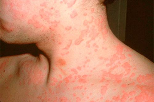 Клиническая картина: pro-allergiyu.ru/allergicheskie-reakcii-organizma-na-lilii.html