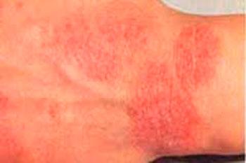 аллергия на хлебобулочные изделия у грудничка