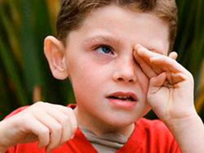 аллергия на мяту симптомы