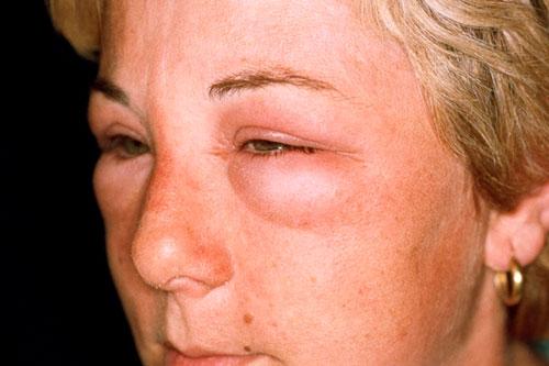 сильная аллергия чем лечить