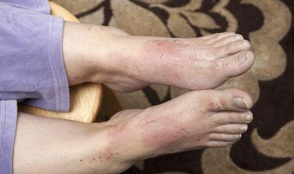Аллергия на обувь