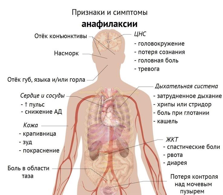Анафилаксия: симптомы, лечение, стадии, неотложная помощь при анафилаксии