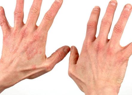 Фото аллергического дерматита