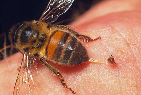 Аллергическая реакция на укус осы