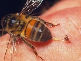 Аллергическая реакция организма человека на укусы пчел