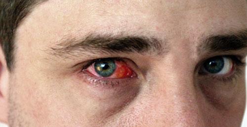 Каковы симптомы такой аллергии?