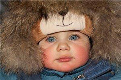 Аллергия на холод: симптомы у малыша