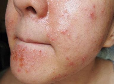 Фото аллергии на крем для лица