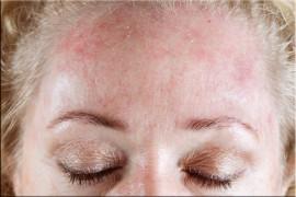 Аллергия на холод: все, что нужно знать о симптомах, причинах и лечении болезни