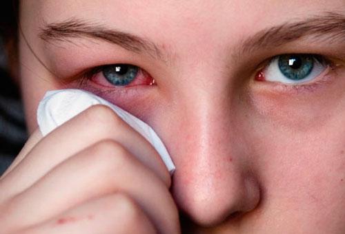 Клинические признаки аллергии на пыльцу