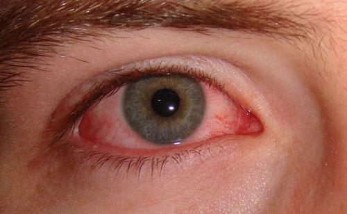 Фото аллергии на линзы.