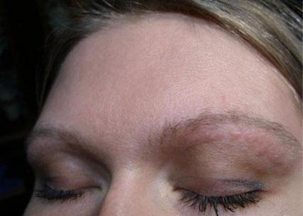 аллергия на тени для век симптомы