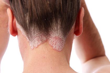 Аллергия на вшей