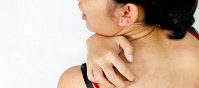 Аллергия кожный зуд лечение