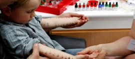 Что необходимо знать о пробах на аллергию детям