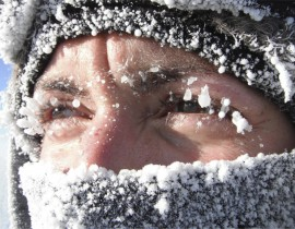 Аллергия на мороз: причины, симптоматика, особенности