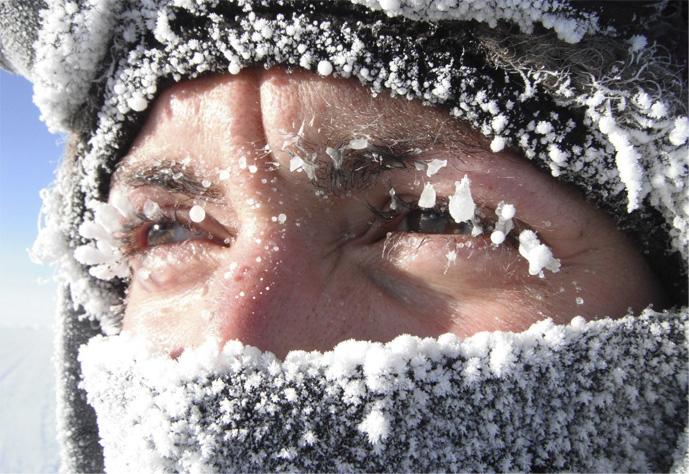 аллергия на мороз лечение