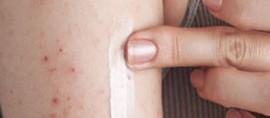 Кремы и мази от аллергии: Бюбхен, Мустела, Фенистил