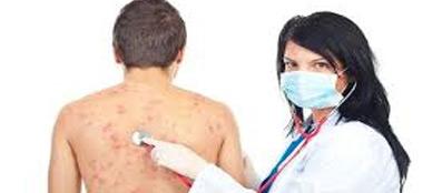 аллергия на пищу у взрослых