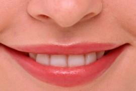 Аллергия на губах