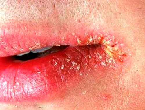 Виды аллергии на губах