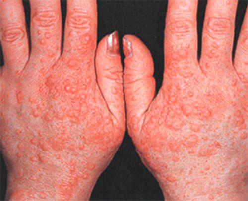 Признаки аллергии на кистях рук