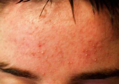 аллергия прыщи на теле чешутся
