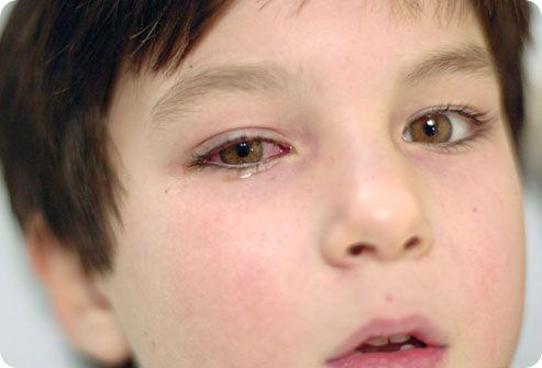 аллергия на глазах что можно сделать