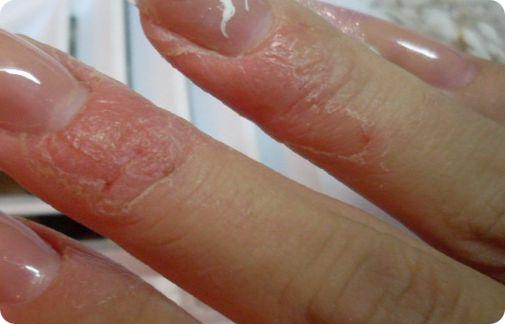 аллергия на ногтях от гель лака лечение