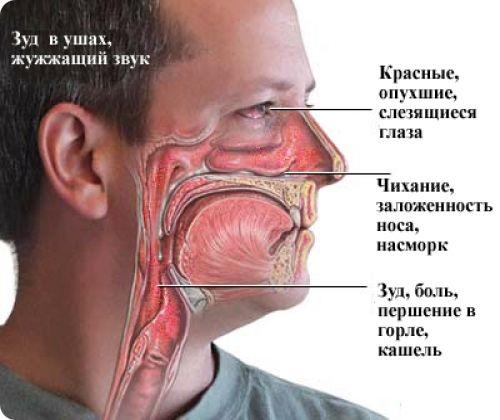 Схема проявления аллергии в