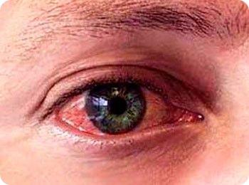 Провоцирующие факторы аллергии