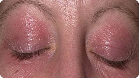 аллергия на веках причина