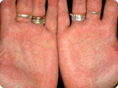аллергия чешутся ладони