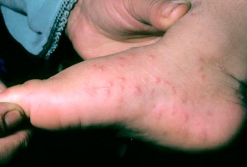 Аллергия на ногах: причины