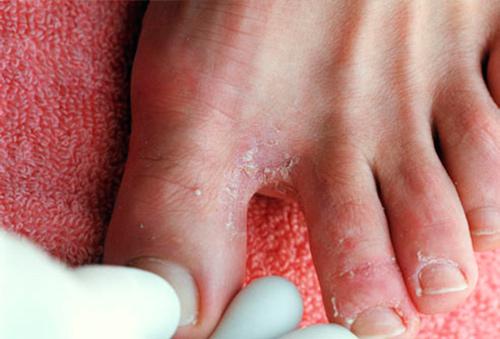 Проявление аллергии на ногах