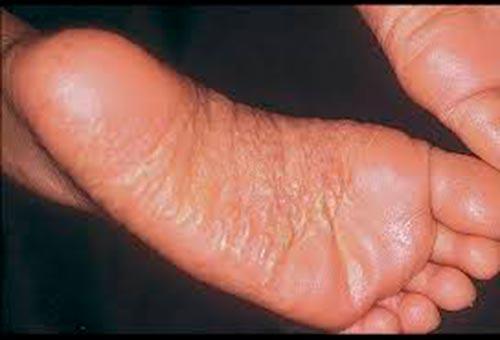 Как можно распознать, что на стопах аллергия?