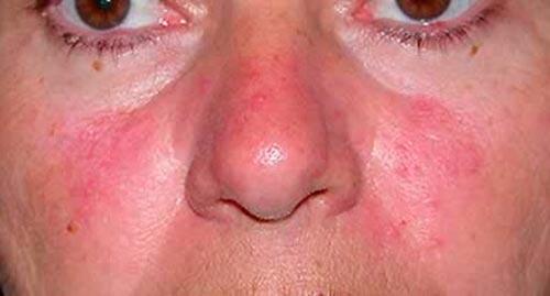 Аллергия на лице красные пятна