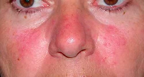 Аллергические пятна на лице лечение