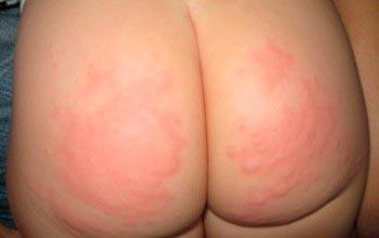 Как проявляется аллергия на ягодицах?