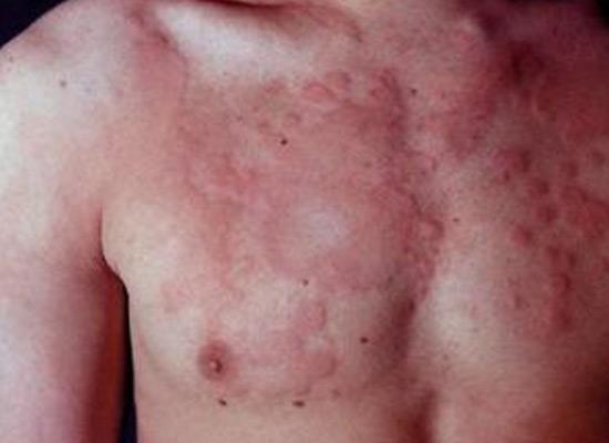 аллергия симптомы фото