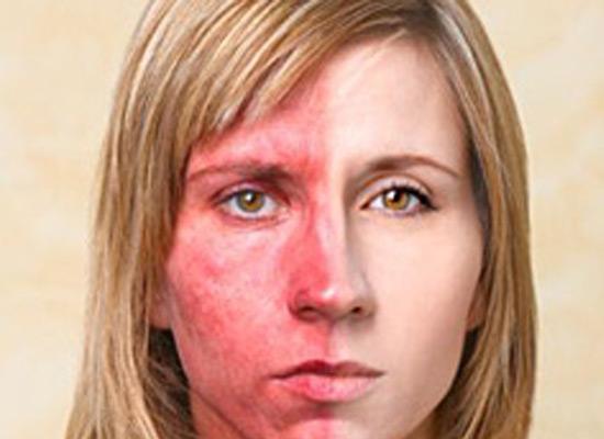 проявление аллергии на гель лак