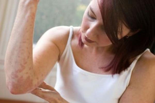 Аллергия на бытовую химию: симптомы