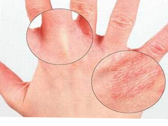 аллергия на моющие средства чем лечить