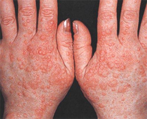 аллергия на холод на ногах чем лечить