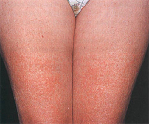 аллергия на никотин фото