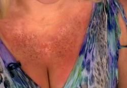 Видео — аллергия на солнце: как насладиться теплом.