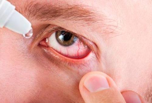 Аллергические пробы