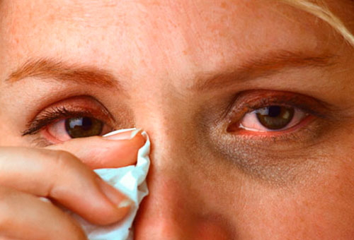 Симптомы воспаления глаз