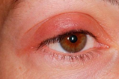 Симптоматика глазного зуда