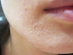Шелушение при аллергии